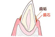 犬の歯の断面図1
