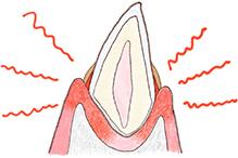 犬の歯の断面図2